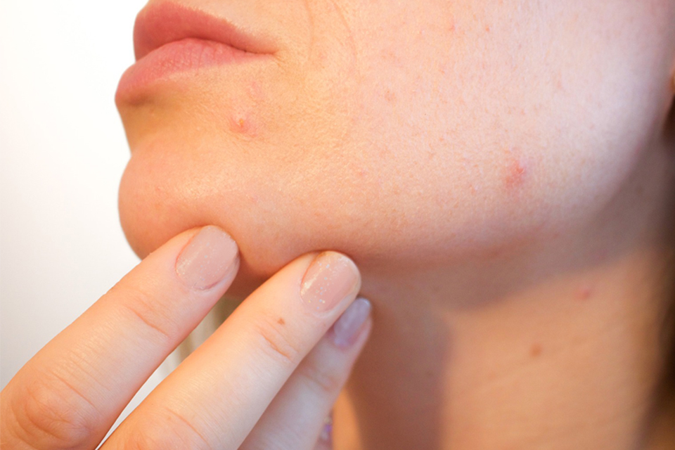 A woman's face spotted with acne.