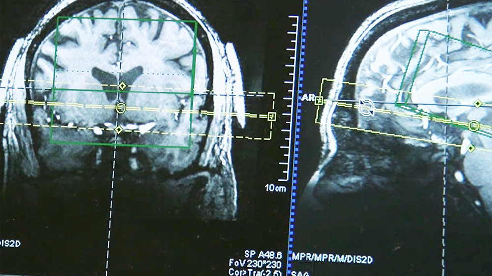A close-up of brain scans
