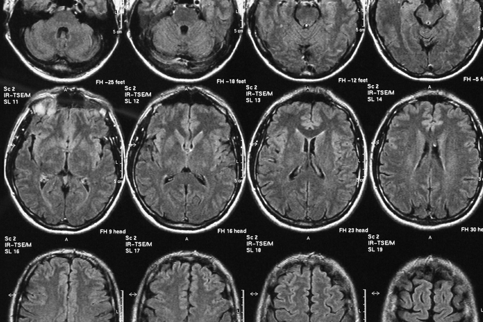 A picture of brain scans.