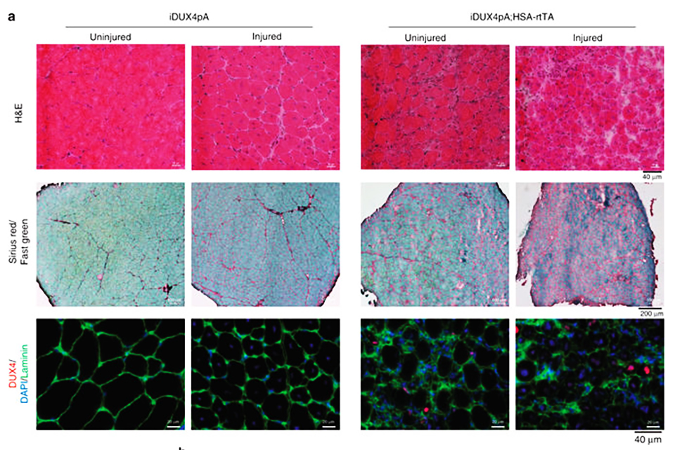 Scientists from the University of Minnesota Medical School inserted into mice a gene called DUX4, which is believed to cause FSHD in humans. When they activated the gene in the mice skeletal muscle cells, the animals developed a slow progressive muscular