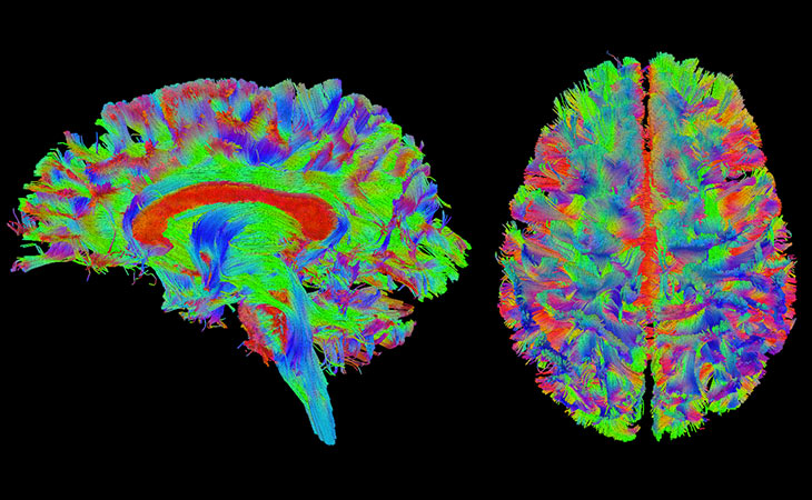 Colorful image of two brain scans