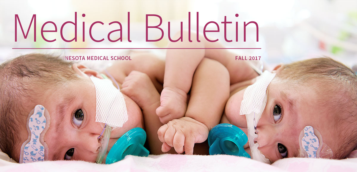 Medical Bulletin Fall 2017, feature story, conjoined twins
