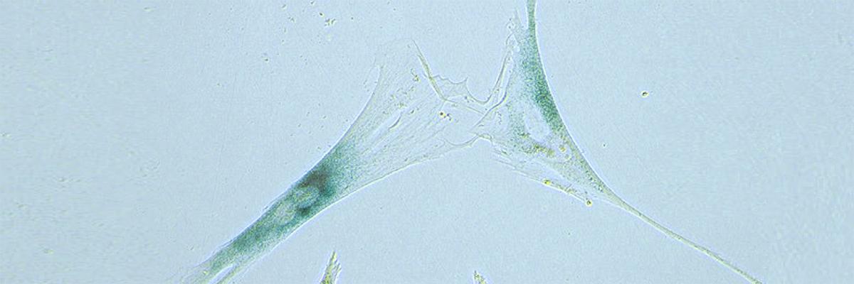 senscent cell