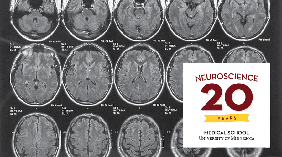 A collage of brain scans and the 20th anniversary graphic.