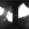 Biplane radiography allows Ellingson to capture bony movement in patients