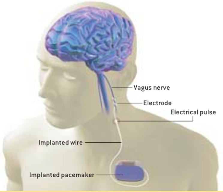 Illustration of vagus nerve stimulation